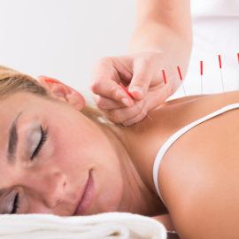 Traditional Chinese Medicine Acupuncture by our Registered Acupuncturist