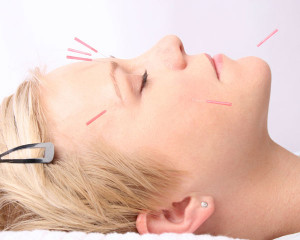 facial-treatment-with-acupuncture
