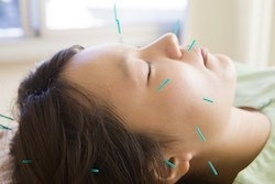 Acupuncture… Sneezing with Allergies?