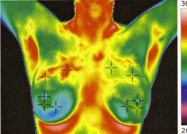 Friday, October 23, 2015  Breast Thermography and Upper/Lower Body Health Screenings will be available.